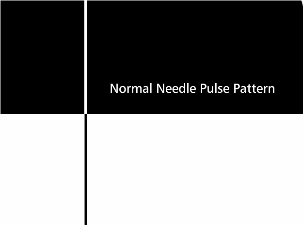 Needle-Pulse Pattern